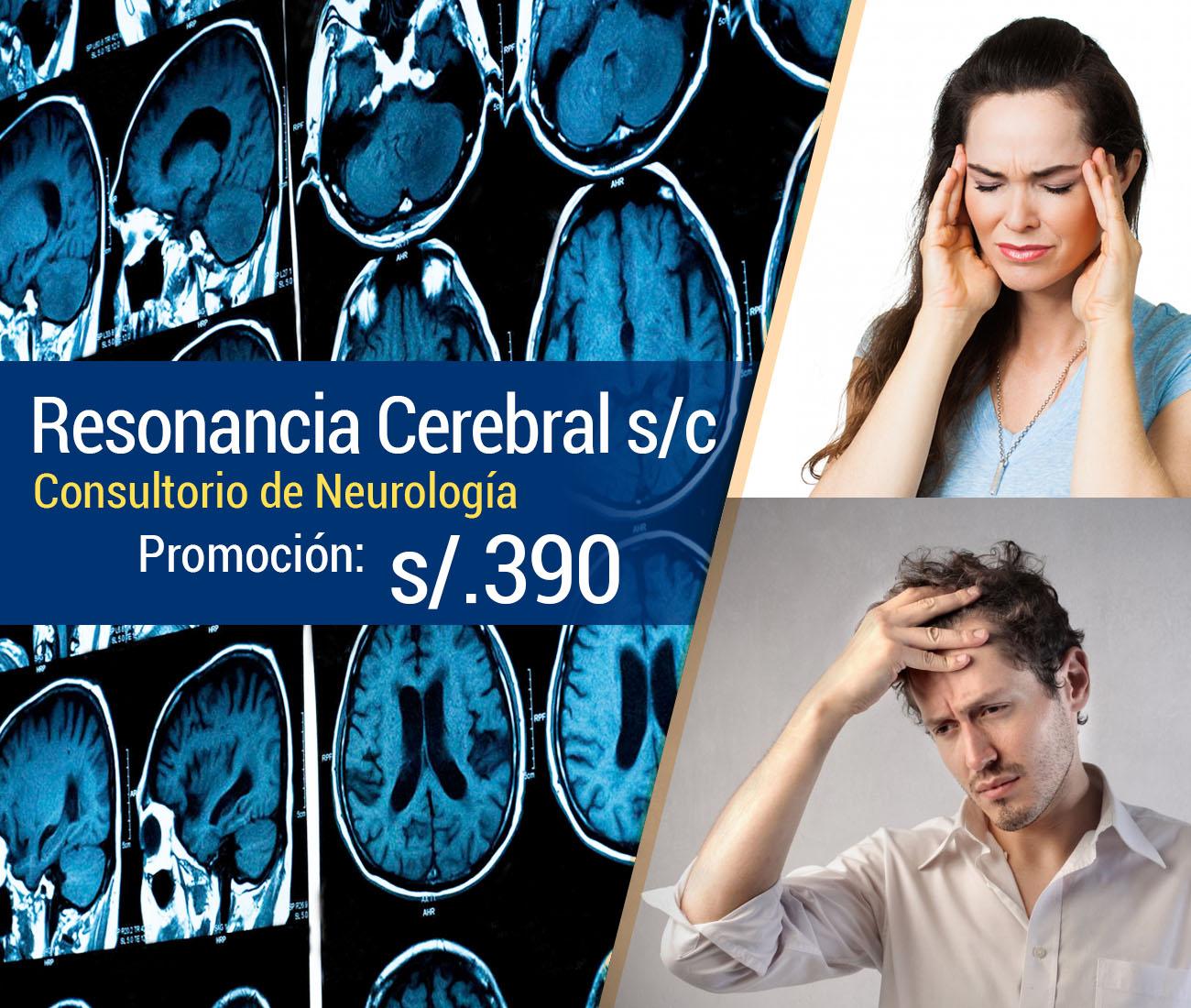 Resonancia Magnética cerebral consultorio neurológico