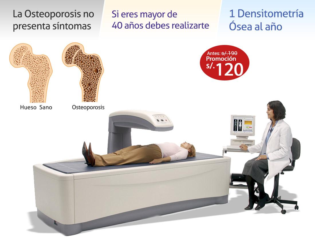 Densitometría Ósea (DMO) a s/.120