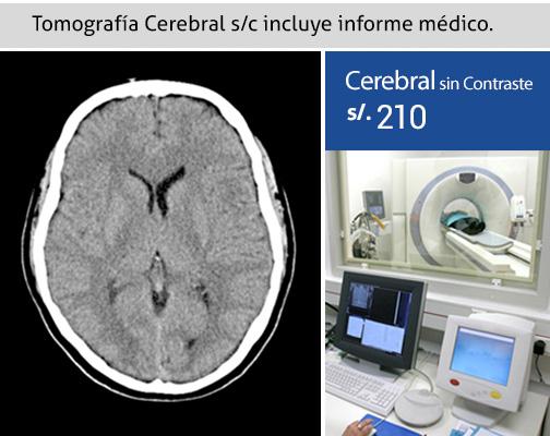 Tomografía Cerebral s/c en Ica 210 soles