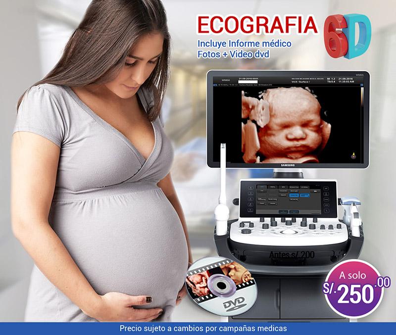 Ecografía 6D HD la mejor imagen de tu bebe en alta resolución.